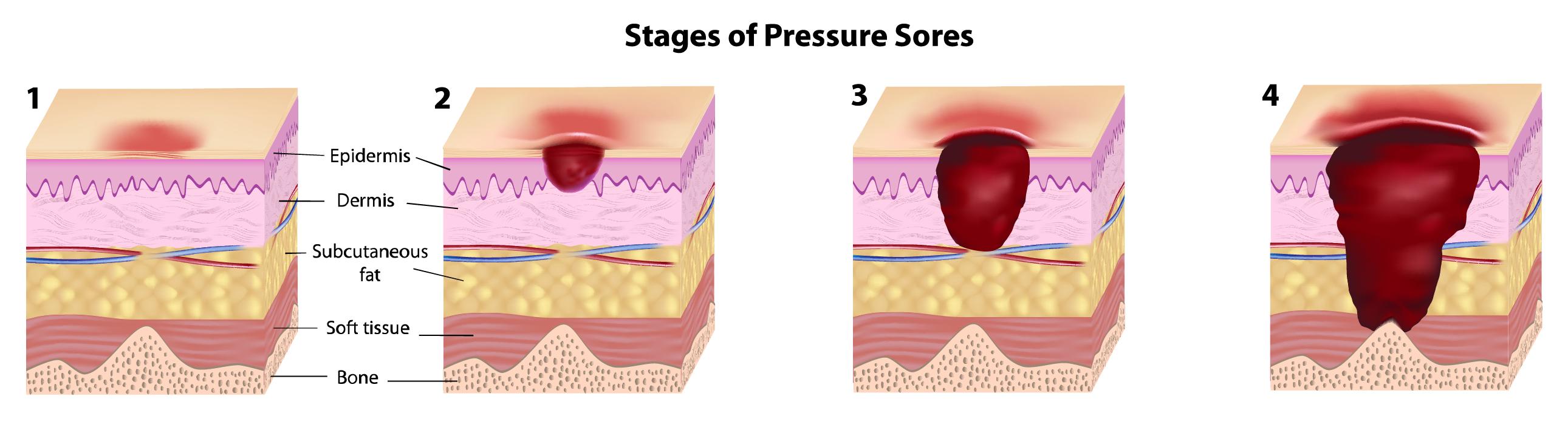 4 Stages of Pressure Injuries
