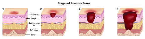 4 stages of pressure ulcers