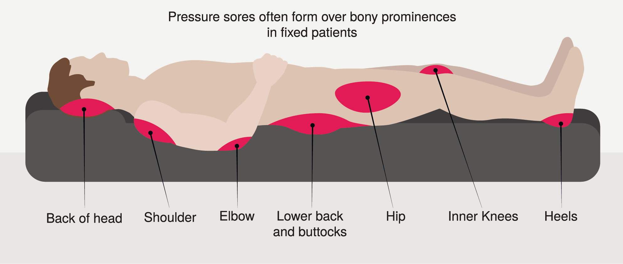 where pressure sores form on the body