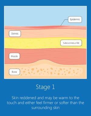 stage-1-pressure-ulcer